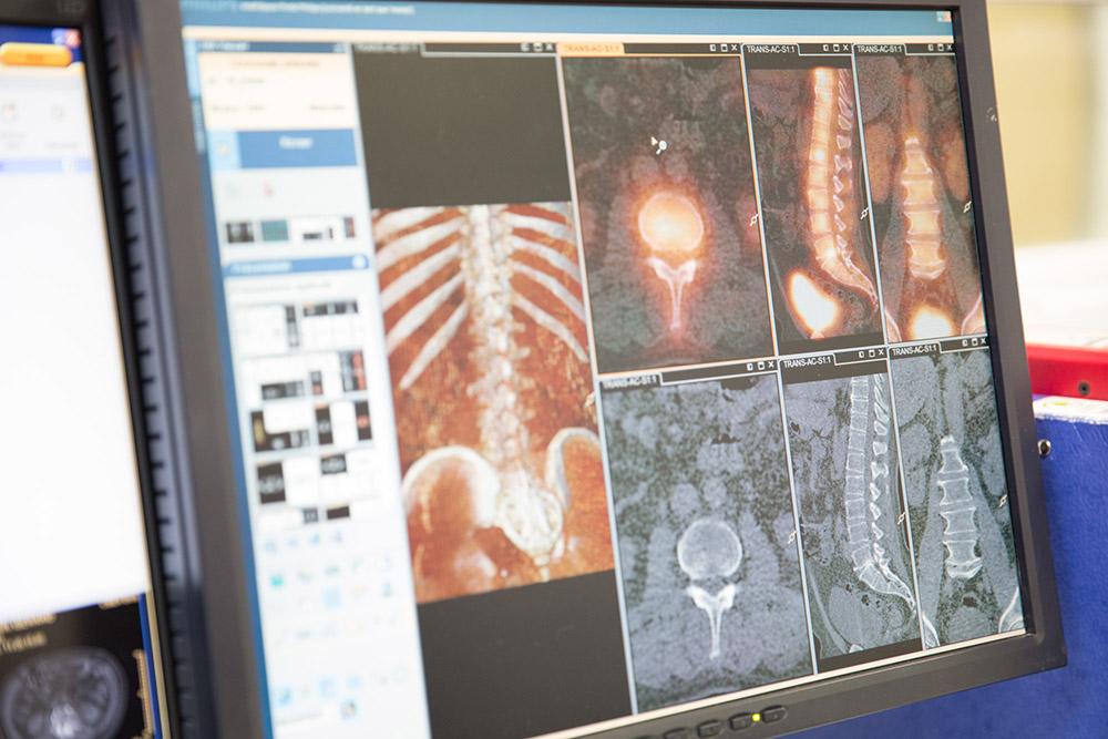 Scintigraphie osseuse couplée à la tdm