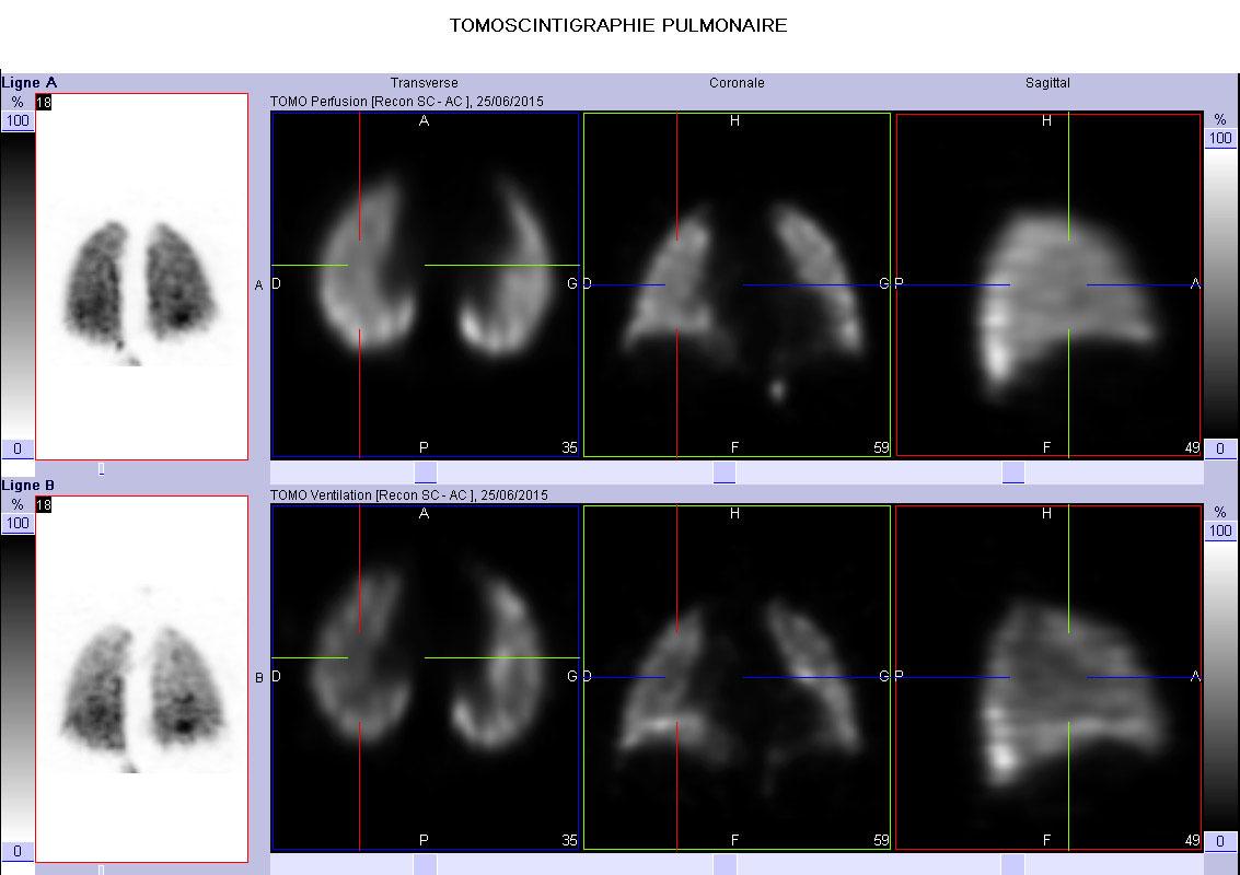 scintigraphie-pulmonaire